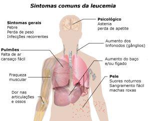 Sintomas-da-leucemia